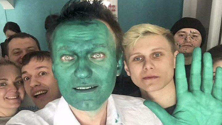 Photo of Alexei Navalny: Kremlin dismisses accusations against Putin